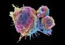 Přelomový výzkum: chemoterapie způsobuje šíření rakoviny po organismu