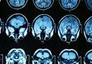 Toxoplasma je nebezpečnější, než se dříve zdálo: způsobuje i rakovinu a Alzheimera