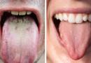 Co o vašem zdraví vypovídá zbarvení vašeho jazyka