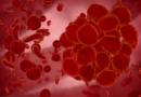 Tvorbě krevních sraženin lze předcházet přirozenými prostředky