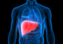 Máte hustou krev, a ztučnělá játra? Odlišný pohled na výživový trend propagující stravu s vysokým podílem bílkovin a tuků