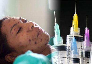 Oficiální místa přiznávají, že spalničkami se nakazí i někteří očkovaní a že vakcína po čase přestává fungovat