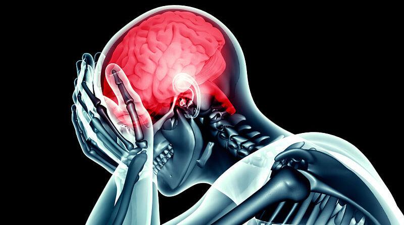 dt-brain-pain-headache-migraine-x-