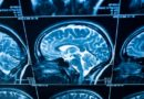 Vědecky potvrzeno: hliník užírá rozum, náprava bývá svízelná