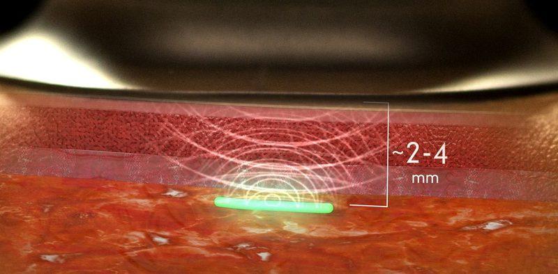Hydrogelové biosenzory: bude ve vakcínách proti covidu využita implantovatelná biotechnologie?