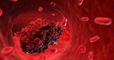 Enzymy chrání cévy a rozpouštějí krevní sraženiny, pomáhají při těžkém covidu
