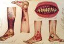 Potlačování fungujících postupů má v medicíně dlouhou historii a nezměnilo se nic