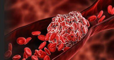 Lékař varuje před mikro-sraženinami, které způsobují mRNA vakcíny – časem mohou vyvolat selhání srdce