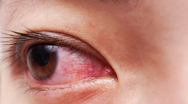 Očkování zasahuje oči pacientů ještě více, než covid, trpí tím i neočkovaní